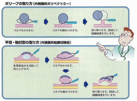 ポリペク説明用図.jpg