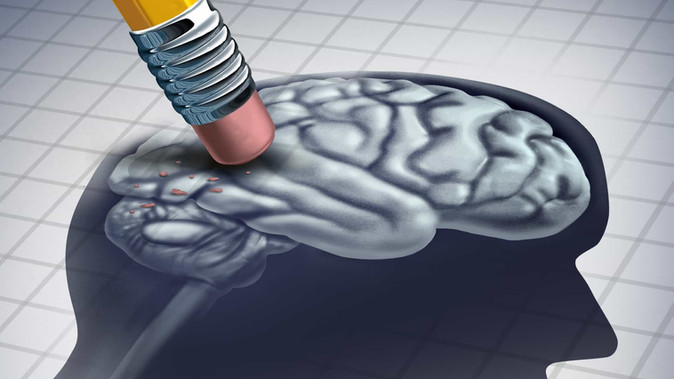 O que você deve saber sobre o Alzheimer