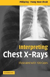 Interpreting-Chest-X-Rays-Illustrated-wi