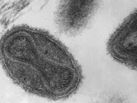 Viruela:¿Por qué siguen guardando muestras de una de las enfermedades más letales del mundo?