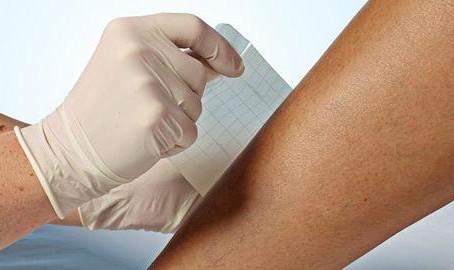 Θεραπεία κατάκλισεων-Μέθοδοι αντιμετώπισης κατάκλισης.