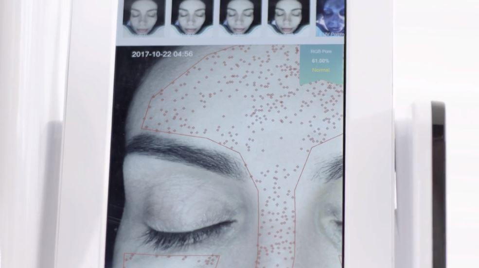 Essenza Skin Analyzer