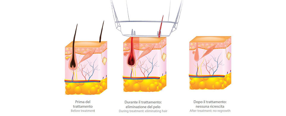 Ricrescita Pelo dopo trattamento di luce pulsata