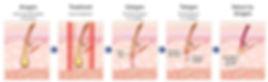 Efficacia del trattamento di Epilazione IPL nella fase anagen