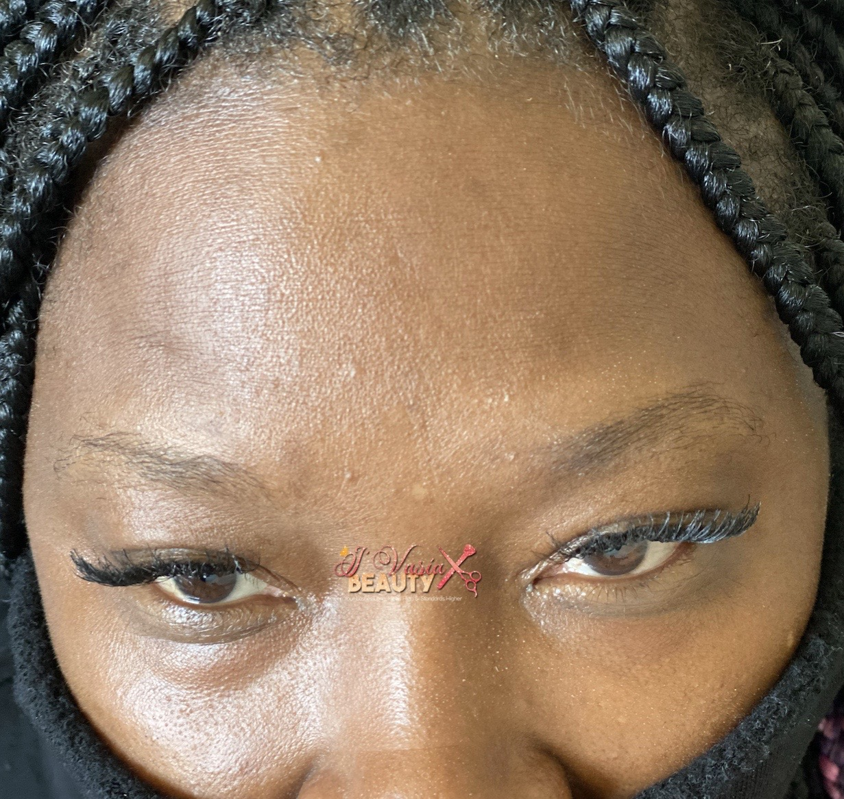 Before Brow Construction