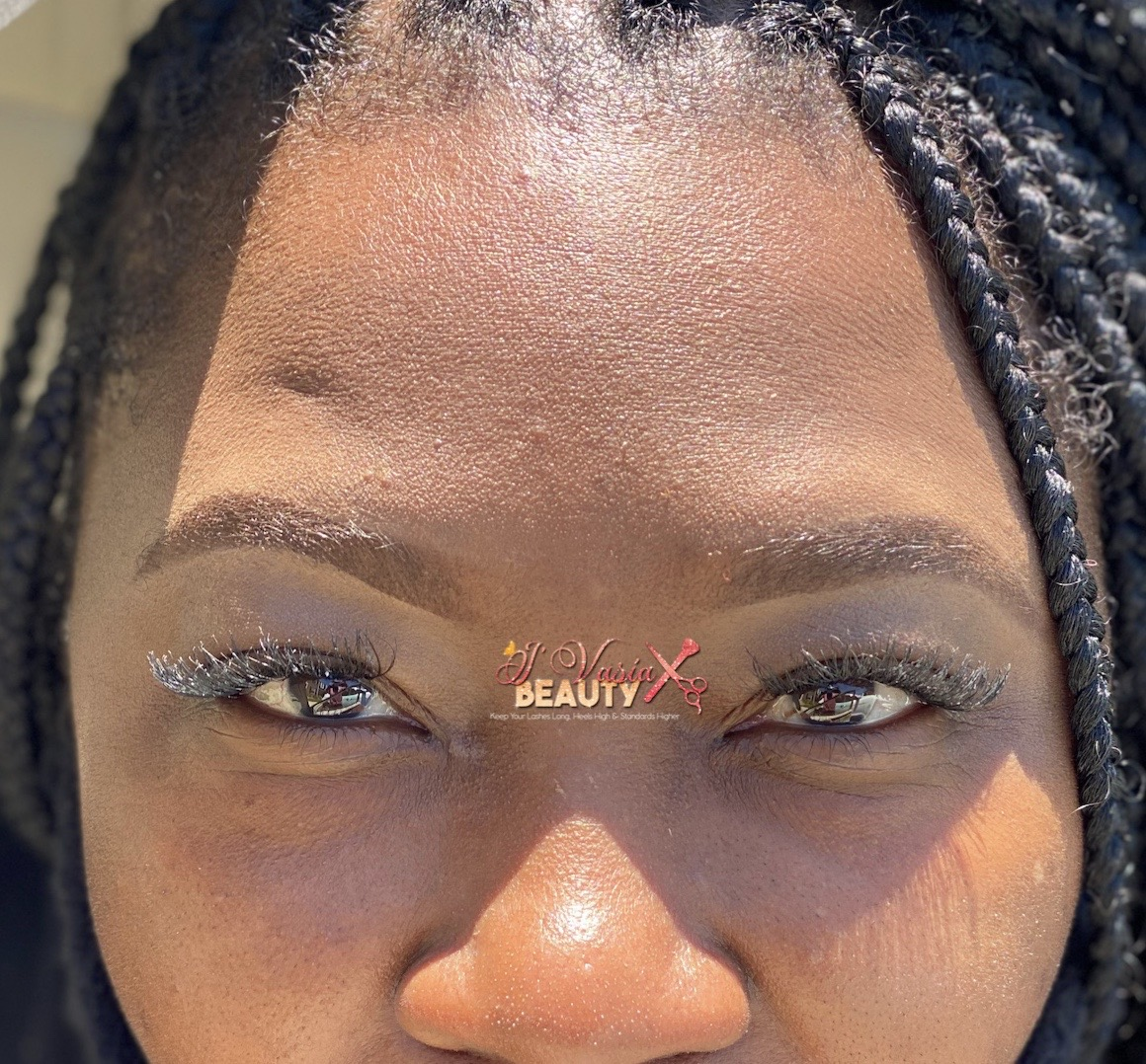 After Brow Construction
