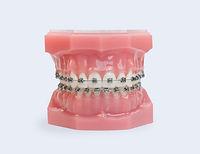 treatment-metal-braces-v2.jpeg