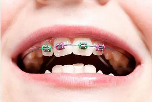 braces-child.webp