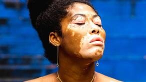 Happy World Vitiligo Day!