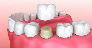 dental_crowns.jpg