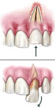 dislodged-tooth-155x300.jpg