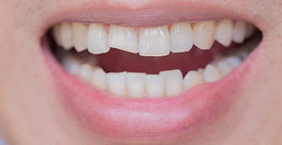 chipped-tooth-what-do-i-do-768x394.jpg