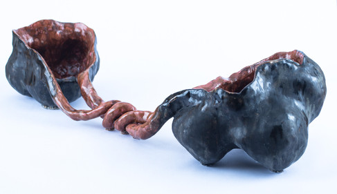 Bicornuate Uterus