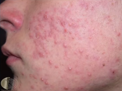 Could Your Multivitamin Be Causing Your Acne?
