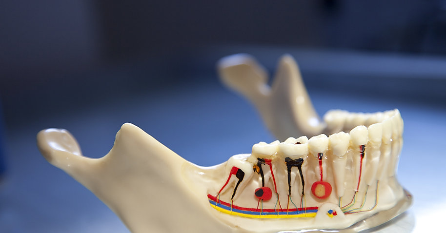 root canal treatment in jaipur.jpg