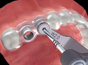 Dental Implants in Jaipur.jpg