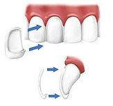 Ceramic Veneer at Thaper Dental.jpg