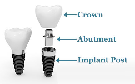 Dental Implant - Abutment - Crown