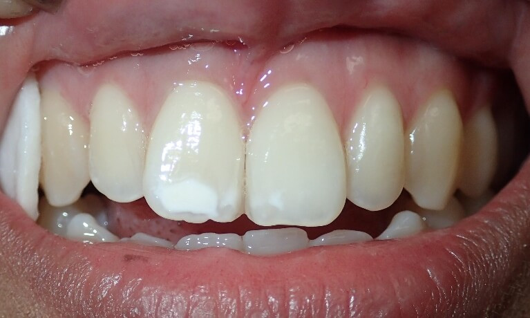 Decalcification due to orthodontic treatment.