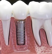 Dental implant in Jaipur.png