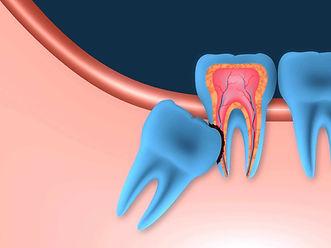 Wisdom teeth removal.jpg