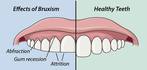 with and without bruxism
