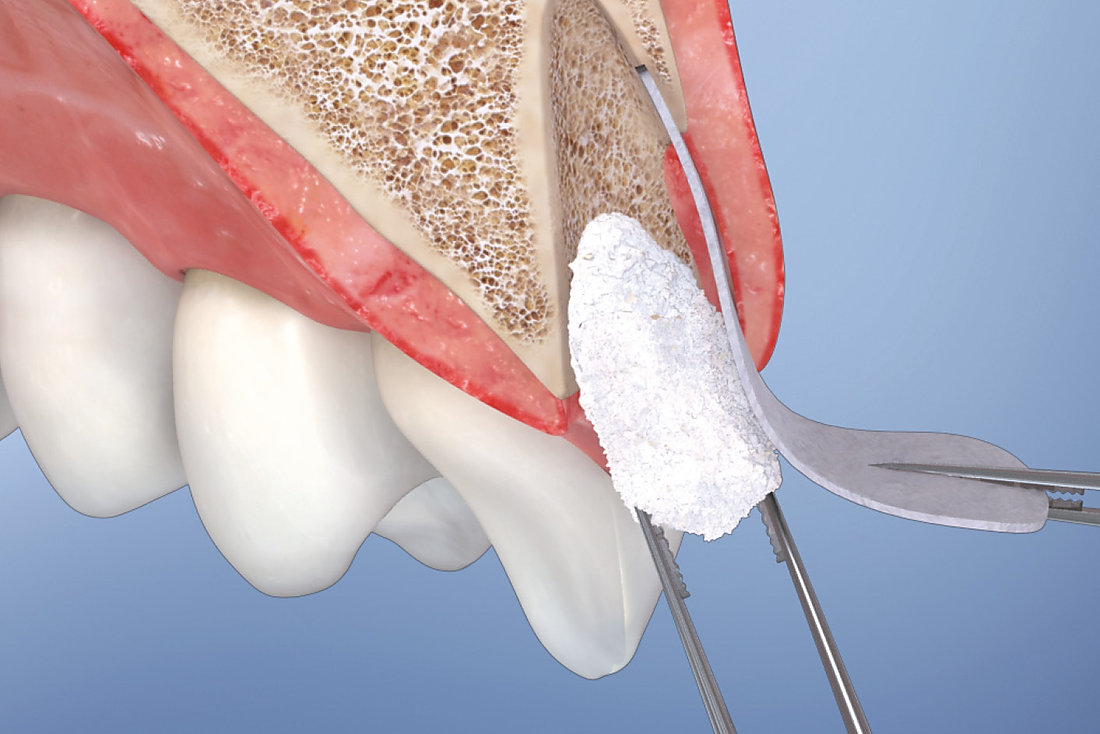 bone graft fot dental implants.jpg