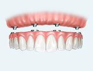 all-on-4-implants in Jaipur.jpg