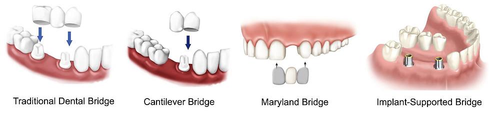types of dental bridge in Jaipur