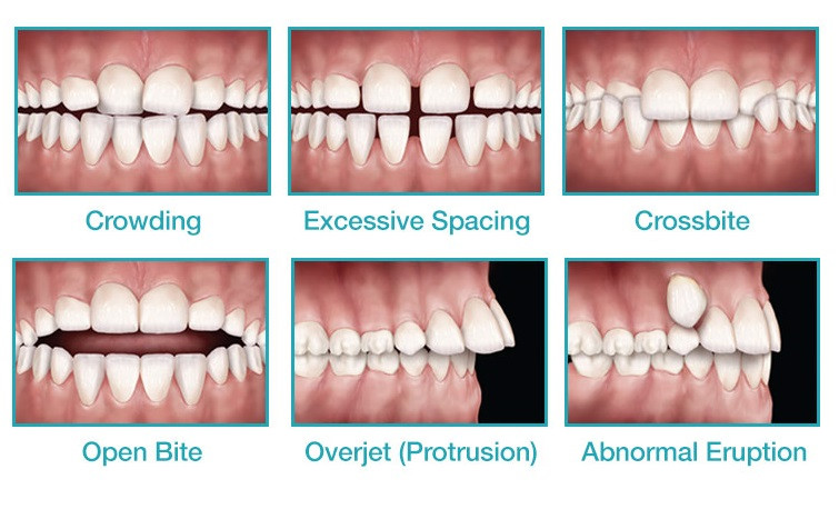 Types of Malocclusion in Kids