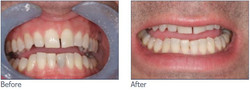 Internal and External Teeth Whitening
