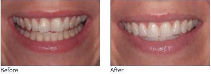 Invisalign Braces, Whitening and Bonding