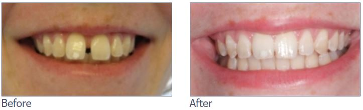 Gap Closure with Clear Aligners