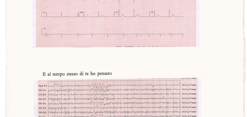 b19_elettrocardiogrammajpg