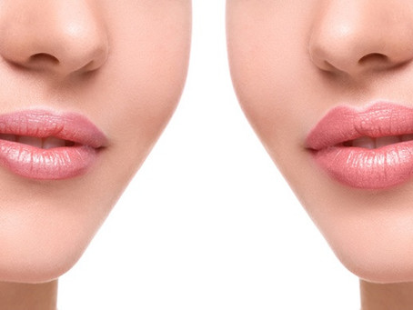 Lip Flip Vs Lip Filler: What you need to know about lip enhancements