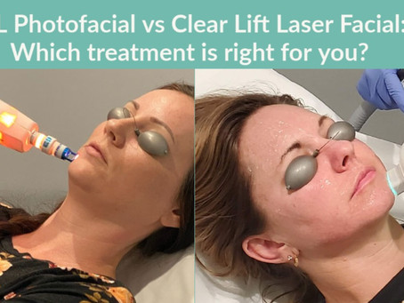 IPL Photofacial vs Clear Lift Tightening Treatment: Which treatment is best for you?