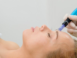 Everything you've ever wanted to know about microneedling