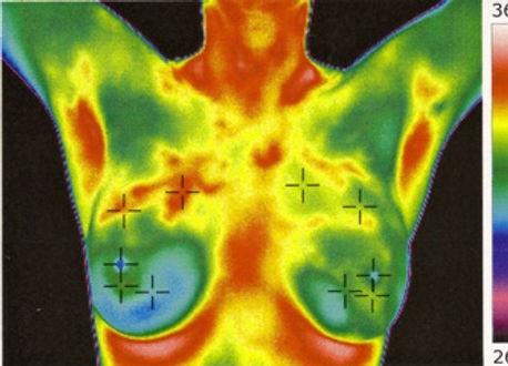 breast scan image.jpg