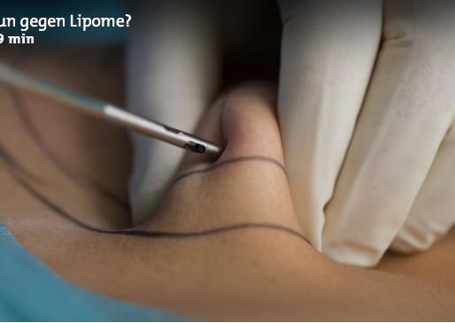 Experteninterview zum Thema Lipom im Radio