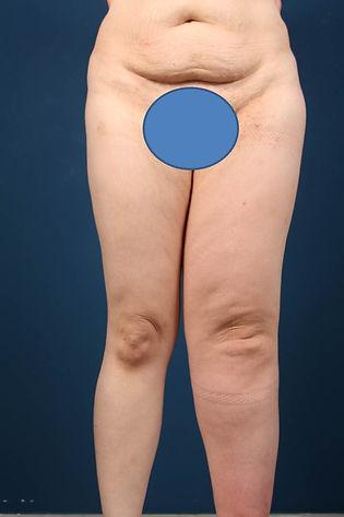 Lymphödem präoperatv