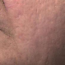 VV_acne_scar_after.jpg