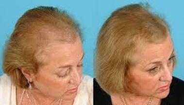 Vampire Hair Restoration.jpg