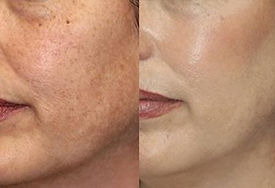 enzyme and chemical peels thumbnail