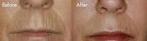 Collagen Induction Therapy or 'Micro Needling' before and after