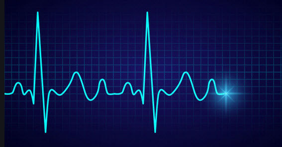 Electrocardiogram rust