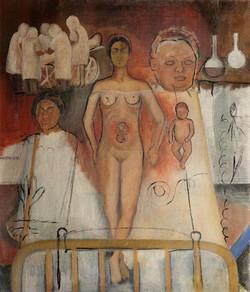 Frida y la cesarea-Copia obras arte famosas frida kahlo