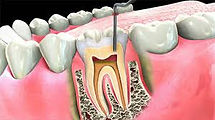 root canal specialist in flint mi