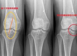 膝の手術をして気づいた身体のあれやこれや