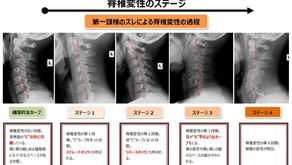 脊椎変性のステージ表