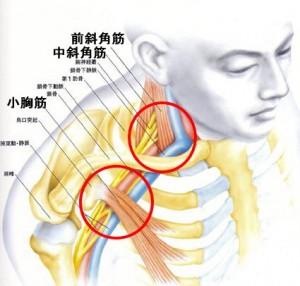 星空散歩治療院 胸郭出口症候群